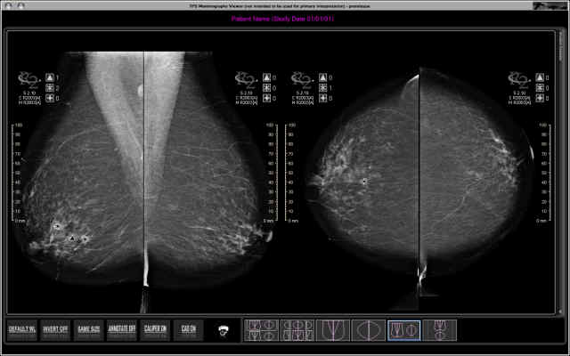 Mammoviewer is a mammography dicom viewer that is used by medical