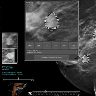 WorkstationOne™ – Mammography Workstation – Three Palm Software