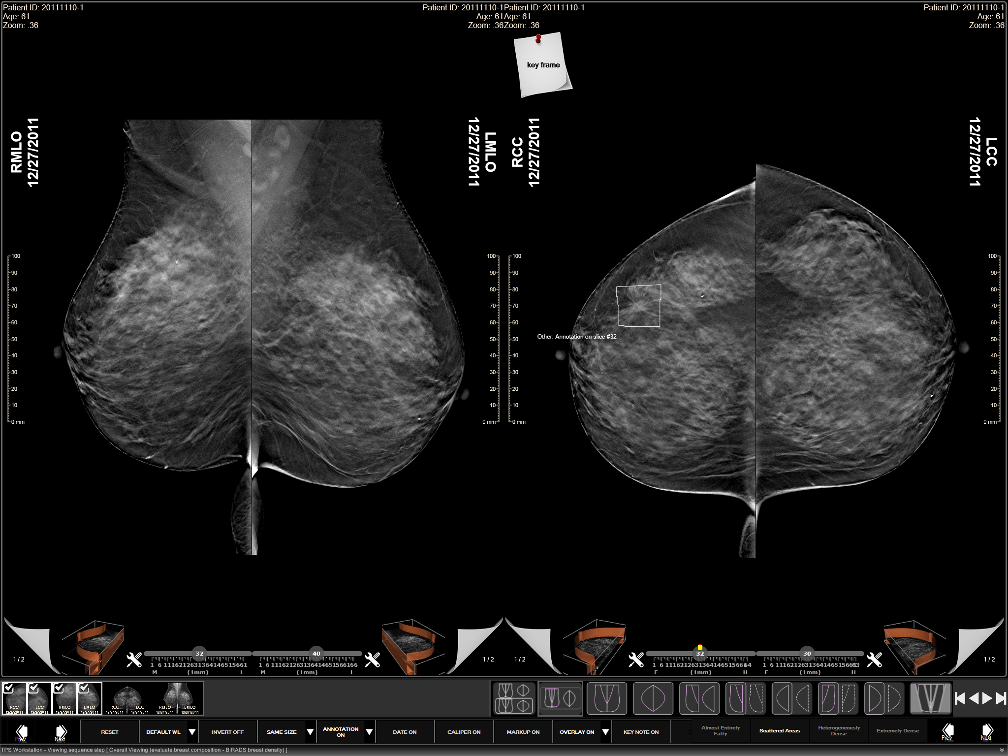 what is 3d tomosynthesis 3d mammography or tomosynthesis is a new type of mammogram for breast cancer detection tomosynthesis reduces the need of additional screening a diagnostic mammogram is performed if a screening mammogram detects an irregularity or mass in the breasts.